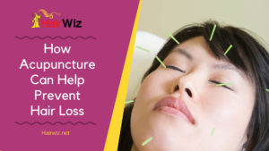 Acupuncture Help Prevent Hair Loss