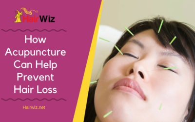 How Acupuncture Can Help Prevent Hair Loss